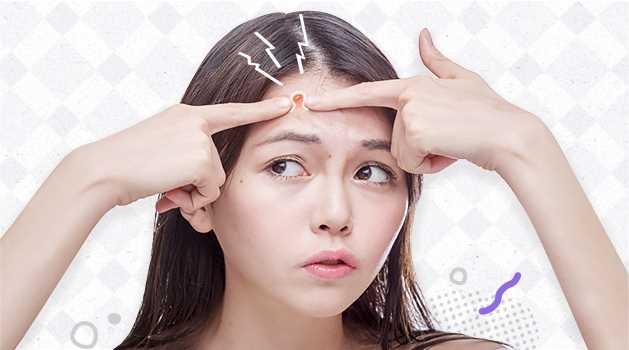 Acne & pimples